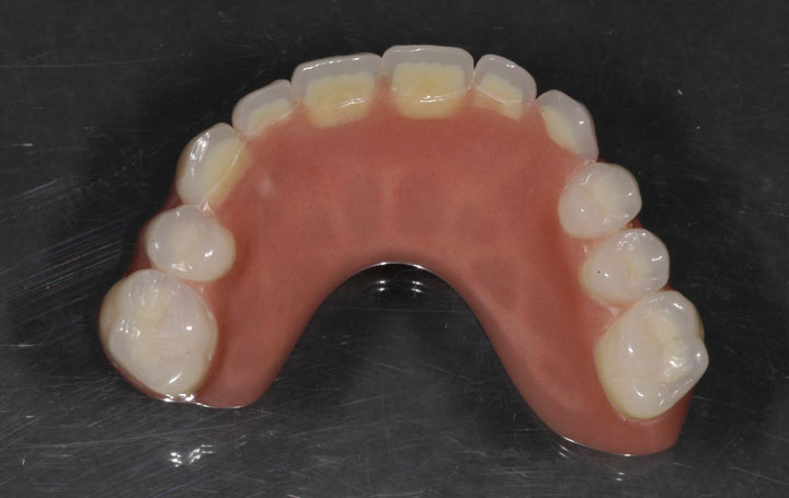 Upper Implant Denture