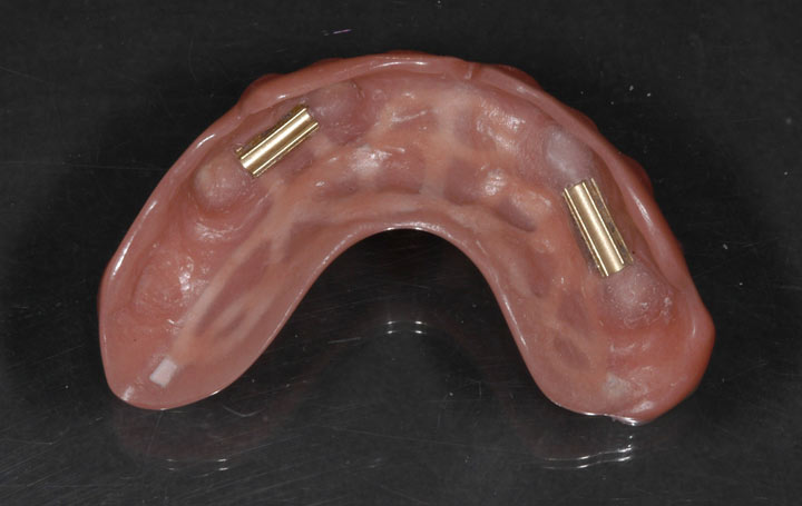 Upper Implant Denture Clips