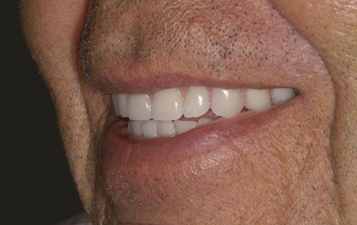 Dental Implants Left Side Smile