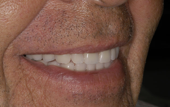 Dental Implants Right Side Smile