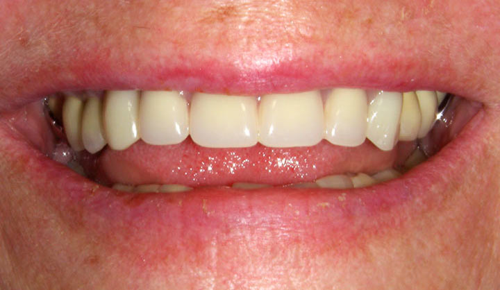 Removable Partial Dentures - After