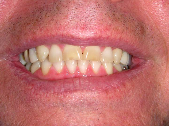 Removable Partial Dentures - Smile